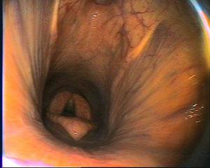 Rachenbereich mit Kehlkopf und Luftsackklappen (oben)