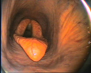 Kehlkopf mit Epiglottis (Kehldeckel)