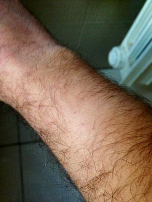 piccoli brufoli sul braccio