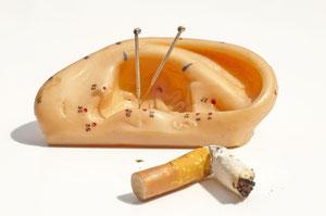 Ohr mit Akupunkturnadeln und Zigarettenstummel