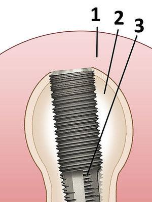 Zahnimplantat (Foto:ISebestyen)