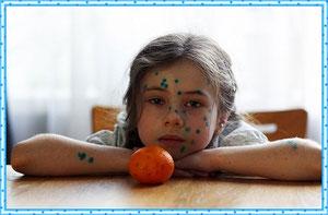 Инкубационный период детских инфекционных заболеваний