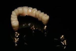 verschraubte Implantat-Arbeit/im Mund verklebt