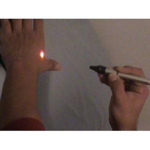 laser terapeutico veracruz