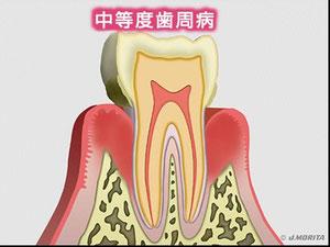 中等度の歯周病の模式図。でもこれだと重度ですね。