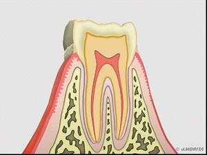歯と歯周組織の断面図