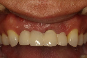 根っこの炎症で歯茎に膿の出口がある場合