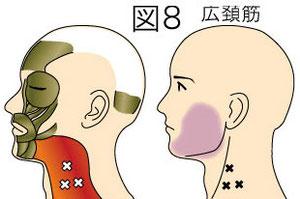 広頚筋トリガーポイントによる顔の痛み