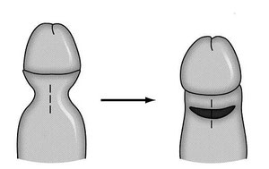 Крайняя плотть безграмотный иссекается равно прикрывает головку.