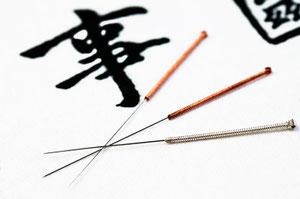 Akupunktur, Heilpraktikerin, Naturheilpraxis, Hamburg-Volksdorf