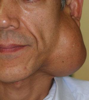 巨大耳下腺腫瘍・顔面神経保存