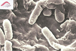 Microscopie par balayage