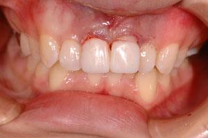 歯の長さを短くする