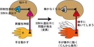 SCN1A遺伝子の変異によるてんかん発作の仕組み                Image:子どものてんかんのブログ