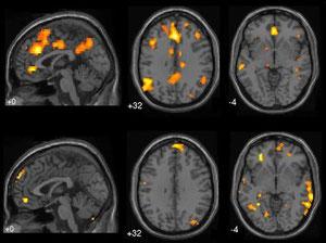 Cerveau de rêveur en IRMf