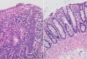 Während vor der Therapie das Gewebe unstrukturiert wuchert, sind am Ende der Therapie die schleimbildenden Zellverbünde wieder gut zu erkennen. (Foto: The New England Journal of Medicine ©2020)