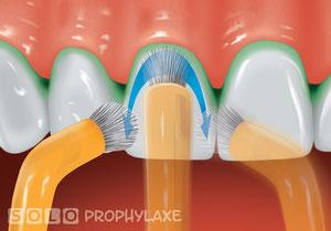 SOLO-Putztechnik sorgt für die Zahngesundheit ©SOLO-MED GmbH