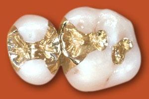 Haltbar, aber leider nicht besonders schön - Einlagefüllungen aus Gold