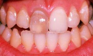 Ein einzelner dunkler Zahn wirkt auffällig störend