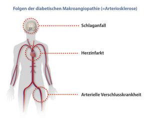 Die diabetische Makroangiopathie = Arteriosklerose