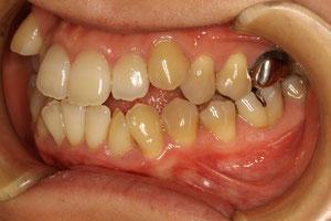 開咬・オープンバイトの矯正治療