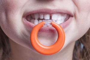 Sog. Mundvorhofplatte, mit der Daumenlutschen und der Schnuller abgewöhnt werden sollen. (© proDente e.V.)