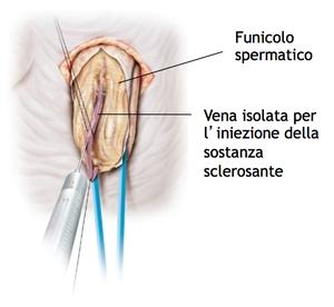 Sclerotizzazione anterograda sec. Tauber