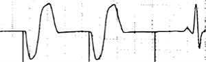EKG Schrittmacher VVI Exit-Block