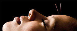 Forscher der Medizinuni Graz untersuchen mit naturwissenschaftlichen Methoden die Wirkung von Akupunktur. Foto:www.photoXpress.com/Yanik Chauvin