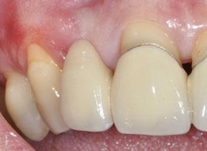 Wenn das Zahnfleisch zurückgeht, liegen Zahnwurzeln und Kronenränder frei