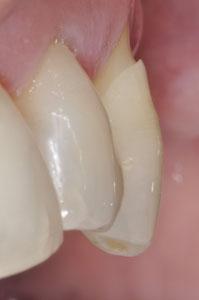 Am Zahnhals entstehen manchmal Kerben, die man selber fühlen kann