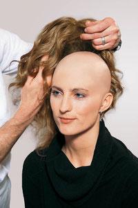 Bei kompletten Haarverlust