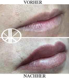 Lippenvollschattierung Bild2: Verheiltes Ergebnis