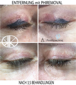 Bilder oben: Fremdarbeit Bilder unten Verheiltes Ergebnis nach mehreren PHIREMOVAL Behandlungen