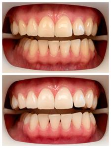 fläsh-Zahnbleaching-Zahnaufhellung-Weiße-Zähne-Gießen