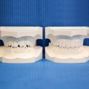 Links: Zustand vor kieferorthopädischer Behandlung / Rechts: nach kieferorthopädischer Behandlung