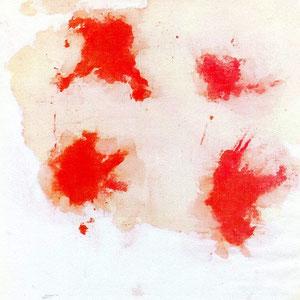 """Una """"pezzuola"""", adoperata da Padre Pio, fotografata nel corso delle 24 ore seguenti la sua utilizzazione; evidente la separazione del sangue dalla sierosità [foto tratte da E. Brunatto, """"Padre Pio"""" (livre blanc), Genève 1963]"""