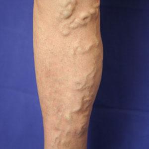 Präoperativ: Stammvarikose der Vena saphena magna mit korrespondierenden Seitenästen