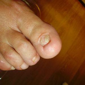 AVANT : Ongle absent ou séquelle opératoire suite chirurgie ratée d'un ongle incarné