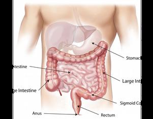 colitisulcerosa