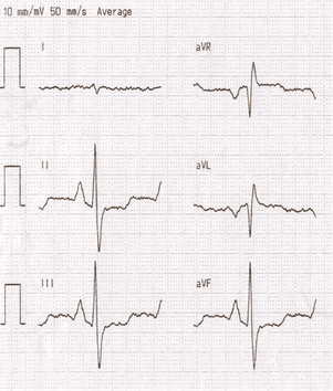 EKG Cor Pulmonale
