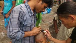 バングラデッシュ 皮膚病の子どものケア