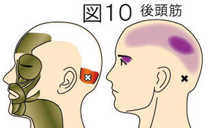 後頭筋トリガーポイントによる頭痛と目の痛み