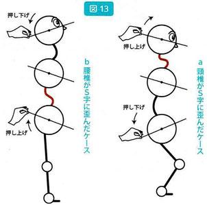 腰椎や頚椎の歪みの原因