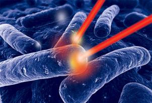 Zerstörung des Biofilms mit HELBO- Laser