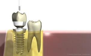Für Implantate müssen bei der PZR spezielle Instrumente verwendet werden. (© Markus Kretschmar - Fotolia.com)