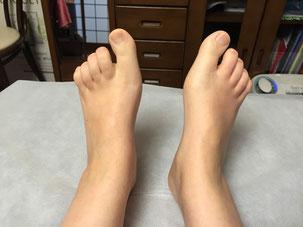 足裏マッサージで指がキレイに伸びました