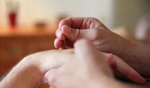 Akupunktur bei TRIMED Main - Praxis für Integrative Medizin