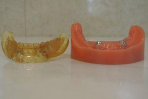 五反田 歯科 たかす歯科クリニック義歯