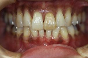 歯茎の退縮